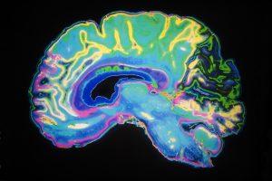 Врачи лучевой диагностики с успехом состязались с искусственным интеллектом